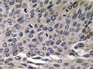 AP20656PU-N - MIP1 alpha / CCL3
