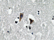 AP20650PU-N - Amine Oxidase A
