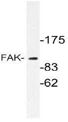 AP20688PU-N - FAK1 / PTK2