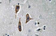 AP20587PU-N - Nephrin