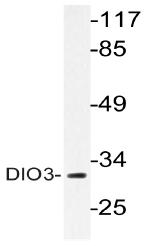 AP20592PU-N - DIO3