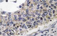 AP20593PU-N - Peroxiredoxin-3 / PRDX3