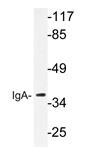 AP20644PU-N - Human IgA