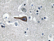 AP20643PU-N - Cholecystokinin / CCK