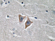 AP20642PU-N - CD57 / HNK1
