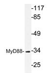 AP20639PU-N - MYD88