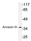 AP20637PU-N - Annexin A3 / ANXA3