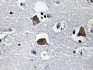 AP20632PU-N - CXCL12 / SDF1