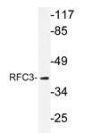 AP20631PU-N - RFC3 / RFC38