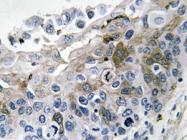 AP20628PU-N - Interleukin-1 beta / IL-1B