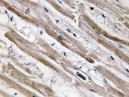 AP20626PU-N - Cytokeratin 13