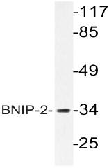 AP20607PU-N - BNIP2