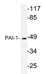 AP20625PU-N - SERPINE1 / PAI1