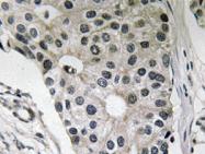 AP20617PU-N - Leptin