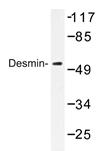 AP20376PU-N - Desmin