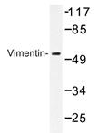 AP20372PU-N - Vimentin