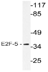 AP20621PU-N - E2F5
