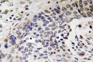 AP20624PU-N - Neurofilament H (200 kD)