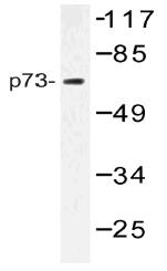 AP20512PU-N - Tumor protein p73 (TP73)