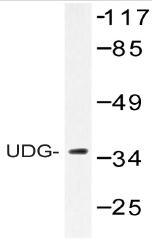 AP20519PU-N - Uracil-DNA glycosylase 2 / Cyclin-O