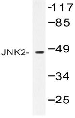 AP20523PU-N - MAPK9 / JNK2