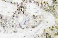AP20531PU-N - PITX1