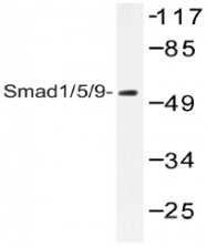AP20533PU-N - SMAD1