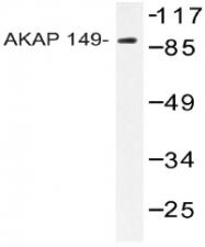 AP20535PU-N - AKAP1