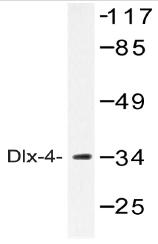AP20536PU-N - DLX4 / BP1