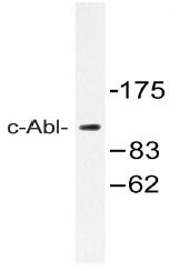 AP20540PU-N - ABL1