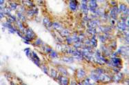 AP20544PU-N - Collagen type I alpha 2 chain