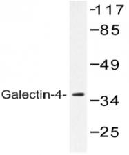 AP20547PU-N - Galectin-4