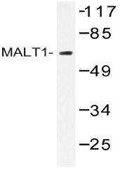 AP20552PU-N - MALT1