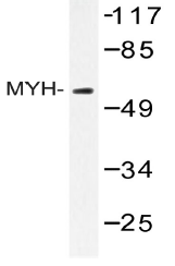 AP20553PU-N - MUTYH