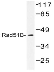 AP20559PU-N - RAD51L1