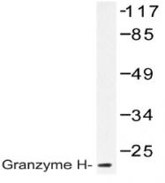 AP20560PU-N - Granzyme H (GZMH)