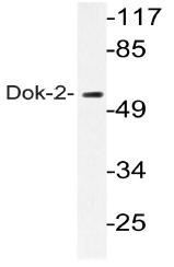 AP20563PU-N - DOK2 / p56 dok2