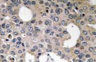 AP20570PU-N - CD124 / IL4R