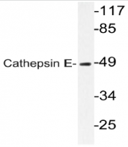 AP20573PU-N - Cathepsin E