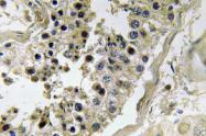 AP20576PU-N - Inhibin beta C chain (INHBC)