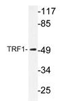 AP20371PU-N - TERF1