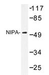 AP20366PU-N - ZC3HC1