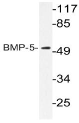 AP20581PU-N - BMP5