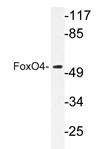 AP20362PU-N - FOXO4 / AFX1 / MLLT7