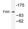 AP20359PU-N - FAK1 / PTK2