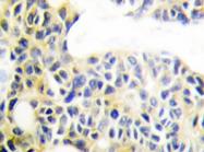 AP20358PU-N - Cytokeratin 18