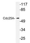 AP20356PU-N - CDC25A