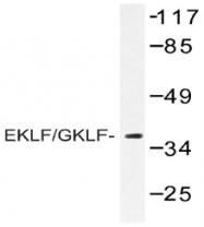 AP20438PU-N - Krueppel-like factor 1 (KLF1)
