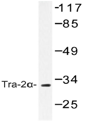 AP20440PU-N - TRA2A