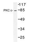 AP20353PU-N - PRKCE